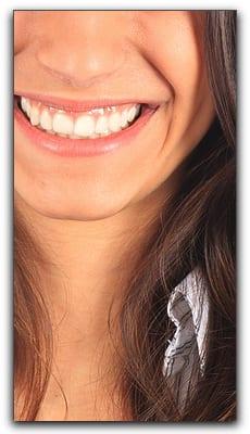 dentistry-smile-makeover